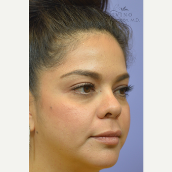 25-34 year old woman treated with Cheek Augmentation after 3421939