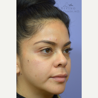 25-34 year old woman treated with Cheek Augmentation before 3421939