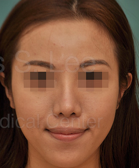 Revision Asian Nose Surgery after 815746