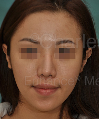 Revision Asian Nose Surgery before 815746