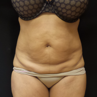 Tummy Tuck before 3012645