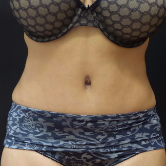 Tummy Tuck after 3012645