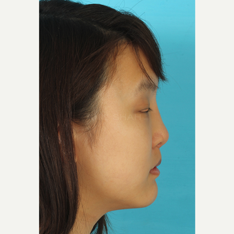 25-34 year old woman treated with Rhinoplasty after 3629190