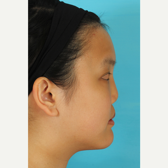 25-34 year old woman treated with Rhinoplasty before 3629190