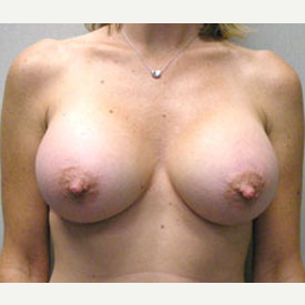 Breast Augmentation after 3681126