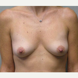 Breast Augmentation before 3681126