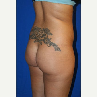 18-24 year old woman treated with Brazilian Butt Lift 1671317