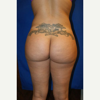 18-24 year old woman treated with Brazilian Butt Lift after 1671317