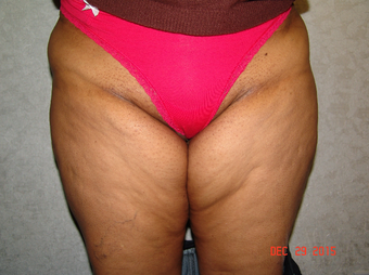 55-64 year old woman treated with Thigh Lift before 2841399