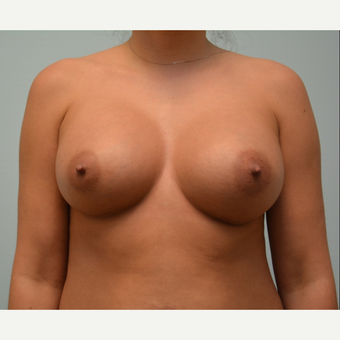 Breast augmentation on  5'5 147 pound patient after 3033239