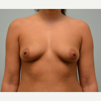 Breast augmentation on  5'5 147 pound patient before 3033239