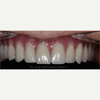 Total Rehabilitation of 55 year old female with dental implants after 3031897