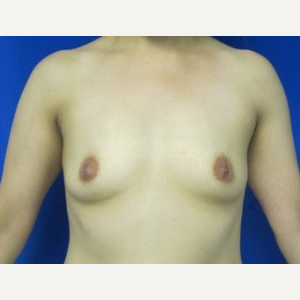 Breast Augmentation before 3054757