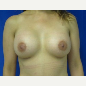 Breast Augmentation after 3054757