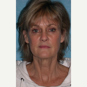 62 year old female with facelift before 3732618