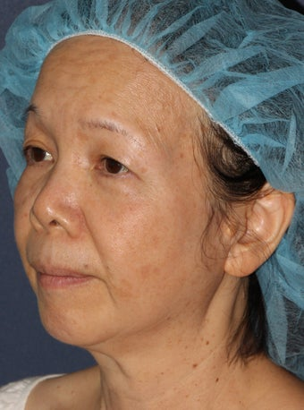 50 year old Asian female treated for brown spots and age spots after 1058156