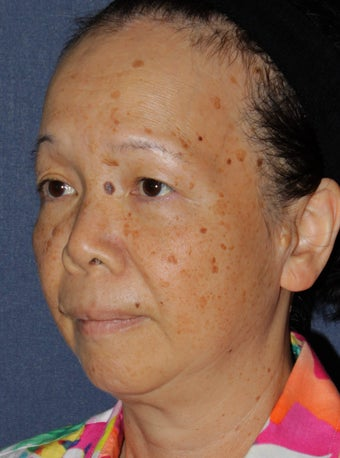 50 year old Asian female treated for brown spots and age spots before 1058156
