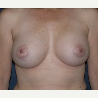 45-54 year old woman treated with Breast Augmentation after 3455529