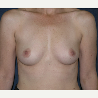 45-54 year old woman treated with Breast Augmentation before 3455529