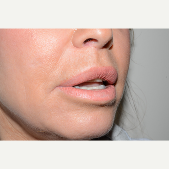 45-54 year old woman treated with Lip Lift