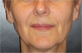 Juvederm before 686400