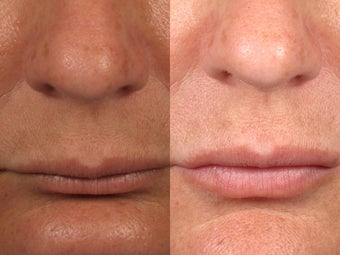 Restylane Treatment for Lip Augmentation before 1208299