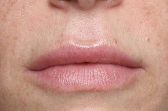 Lip treatment with Restylane® after 119340