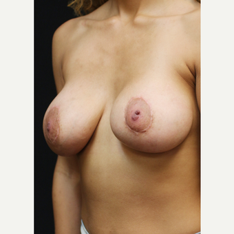 22 year old woman treated with Breast Lift with Implants after 3064289