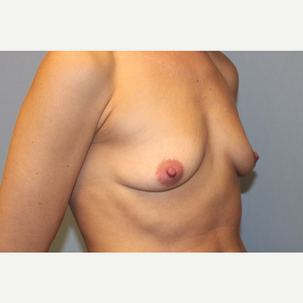 25-34 year old woman treated with Breast Augmentation before 3569628