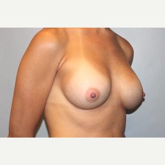 25-34 year old woman treated with Breast Augmentation after 3569628