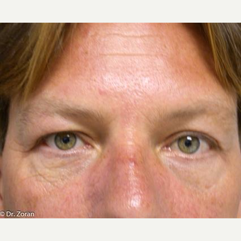 35-44 year old man treated with Eyelid Surgery after 3093429