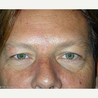 35-44 year old man treated with Eyelid Surgery before 3093429