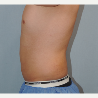 25-34 year old man treated with Smart Lipo before 3448582