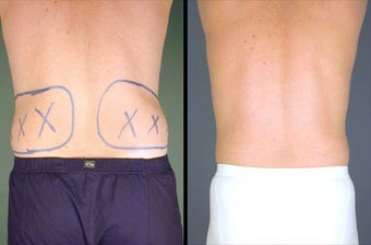 Flank Liposuction Under Local Anesthesia before 996405