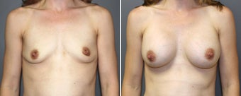 breast augmentation before 977347