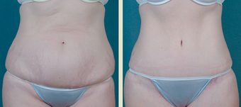 Tummy Tuck before 1377782
