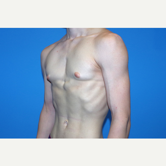 18-24 year old man treated with Male Breast Reduction after 2998858