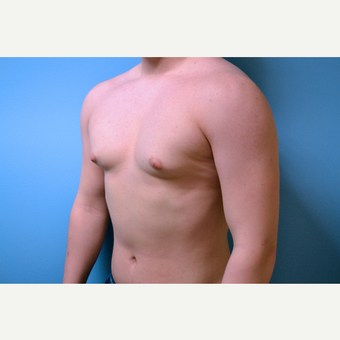 18-24 year old man treated with Male Breast Reduction before 2998858