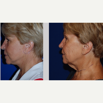 65-74 year old woman treated with Facelift before 3606013