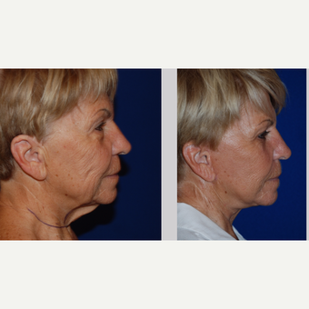 65-74 year old woman treated with Facelift after 3606013