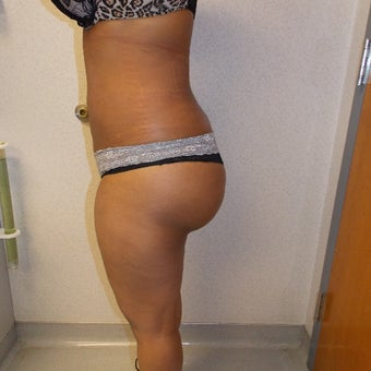 25-34 year old woman treated with Fat Transfer after 1686310