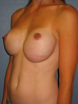 Breast Implant Revision before 749438