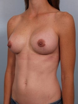 Breast Implant Revision after 749438