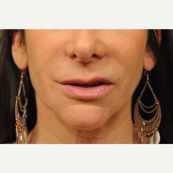 55-64 year old woman treated with Lip Lift before 2568834