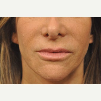 55-64 year old woman treated with Lip Lift after 2568834