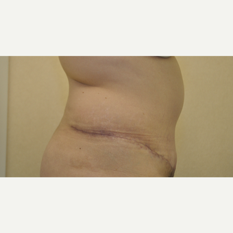 35-44 year old woman treated with Tummy Tuck after 3102844