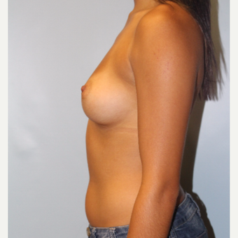 25-34 year old woman treated with Breast Augmentation before 3810071