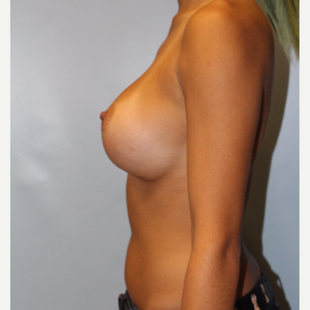 25-34 year old woman treated with Breast Augmentation after 3810071