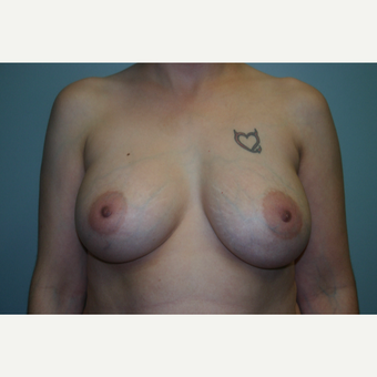3 Years Post-op Breast Augmentation after 3054284