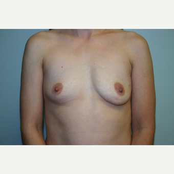 3 Years Post-op Breast Augmentation before 3054284
